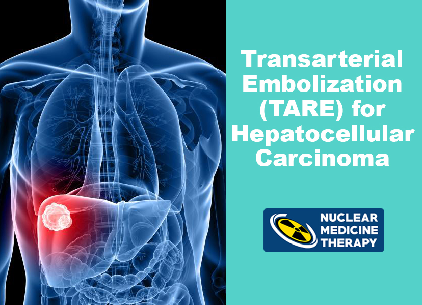 What is Transarterial Radioembolization (TARE)