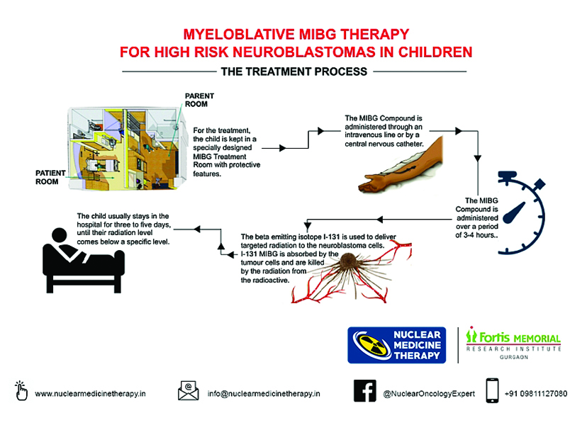 131 Iodine MIBG Therapy For Pediatric Neuroblastoma